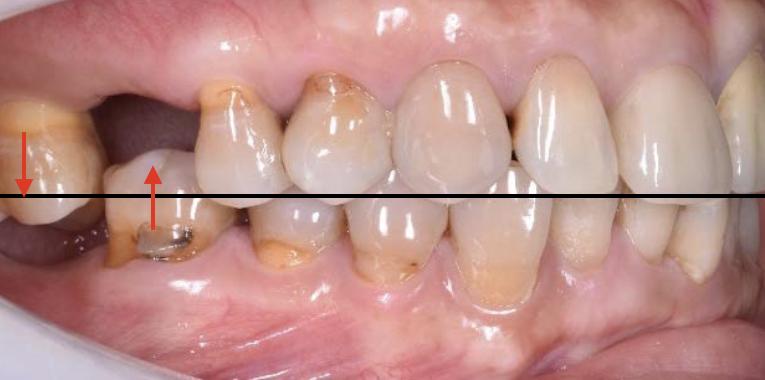 為什麼牙齒本來不痛,補完牙齒後反而開始疼痛了?