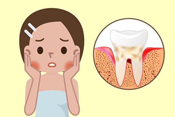 牙周炎要切掉牙齦到底有多恐怖?