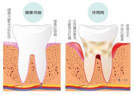 為什麼牙結石會長在牙齦下面?