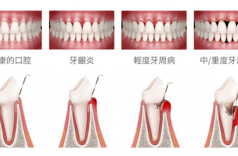 牙齒最主要有兩種疾病