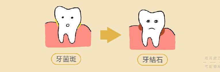 對抗牙周病:飯後睡前要刷牙用牙線