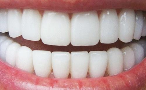 牙疼不是病,疼起來真要命!醫生:牙齒上有黑點可能是這2種問題