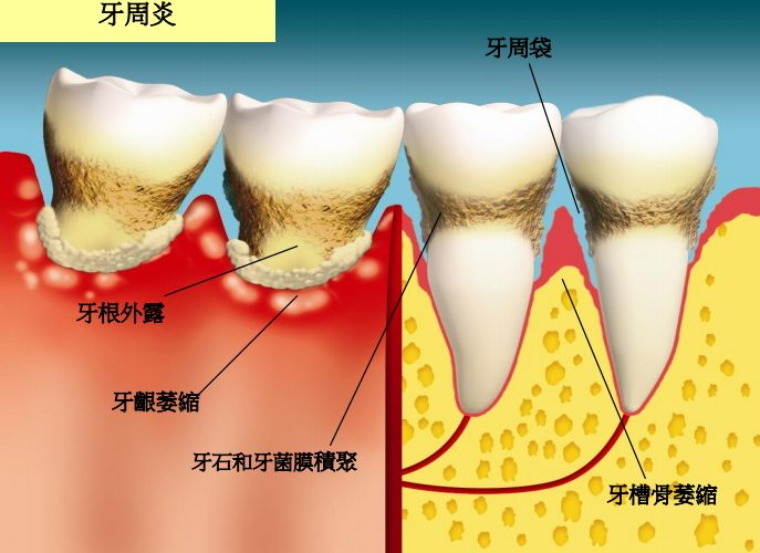 牙周病的治療