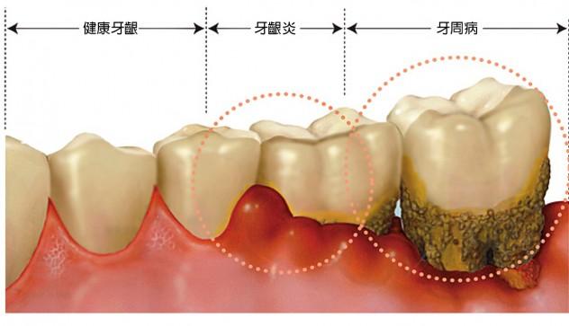 牙周病會自己好起來嗎?