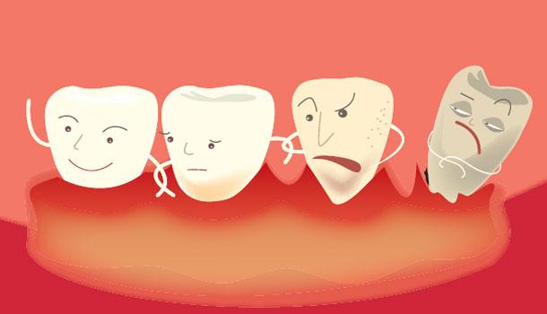 牙周病的基本治療