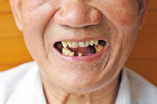 [牙醫] 牙齒缺失怎麼辦?植牙專家告訴你植牙必備條件!