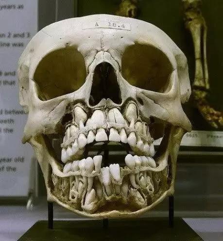 人為什麼只能長兩次牙齒?