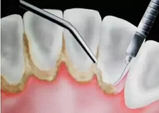 洗牙和牙周刮治的區別在哪裡