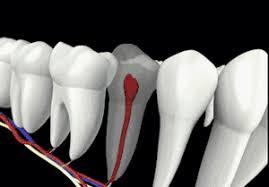 牙齦腫脹、流血,不一定是牙周病
